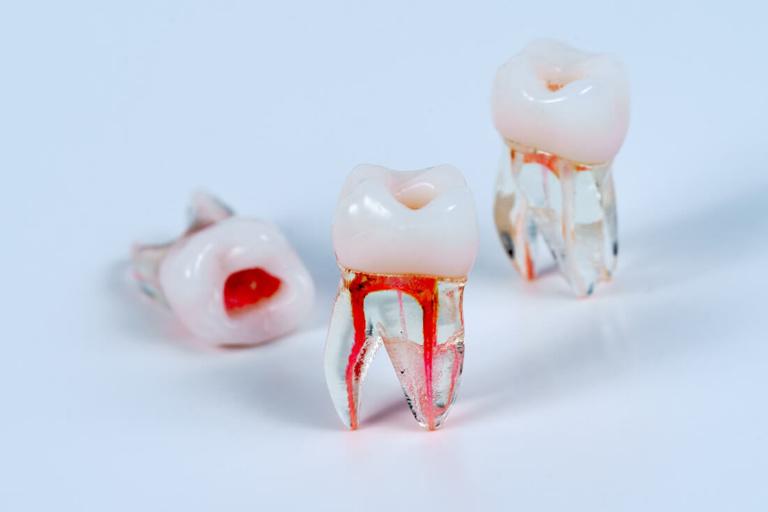 Zahnarzt Hüttlingen - Dr. Scheuermann - Leistungen - Endodontie